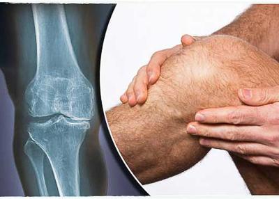 Osteoartrite ou Osteoartrose