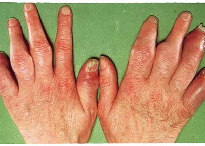 Artrite Psoriásica E Psoríase
